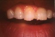 Grinding teeth San Antonio TX