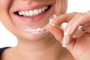 orthodontic retainers san antonio tx