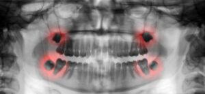 wisdom teeth San Antonio TX