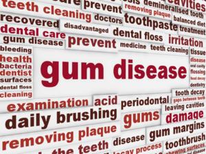 Gum Disease San Antonio TX