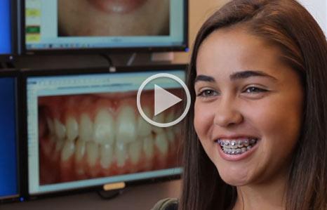 Testimonial Alex Stone Oak Orthodontics San Antonio TX